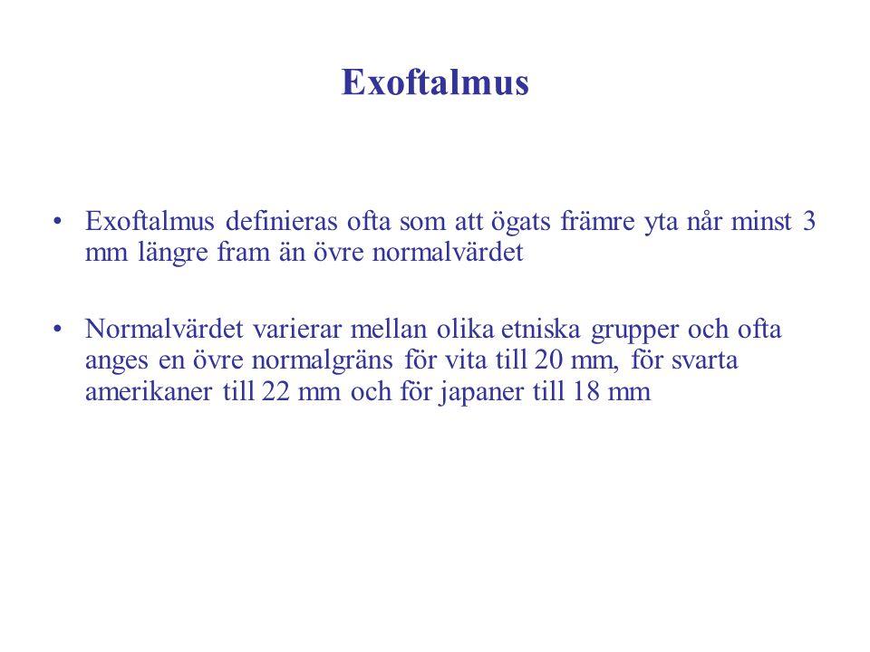 Exoftalmus Exoftalmus definieras ofta som att ögats främre yta når minst 3 mm längre fram än övre normalvärdet Normalvärdet varierar mellan olika etni