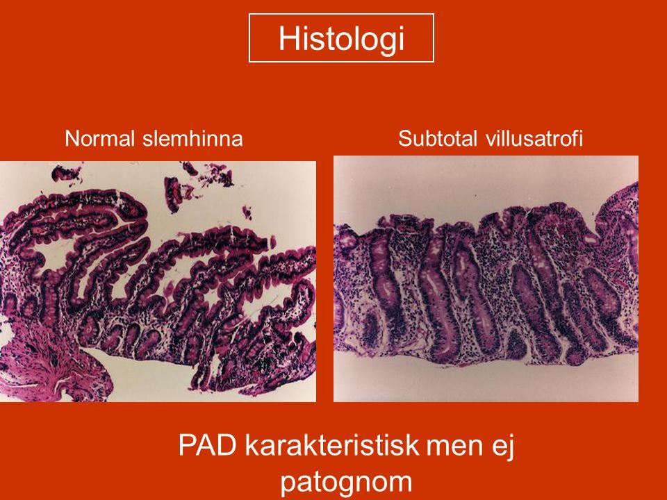 Normal slemhinnaSubtotal villusatrofi Histologi PAD karakteristisk men ej patognom