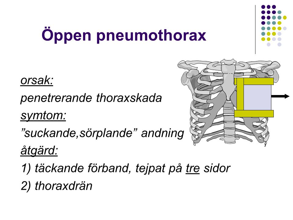 """Öppen pneumothorax orsak: penetrerande thoraxskada symtom: """"suckande,sörplande"""" andning åtgärd: 1) täckande förband, tejpat på tre sidor 2) thoraxdrän"""