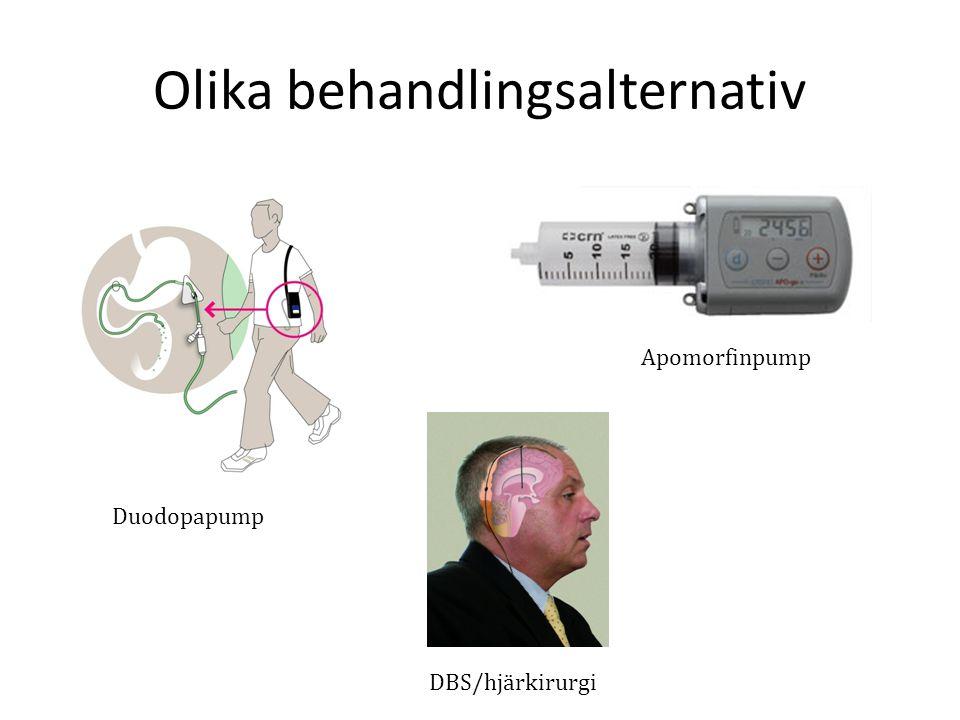 Olika behandlingsalternativ Duodopapump Apomorfinpump DBS/hjärkirurgi