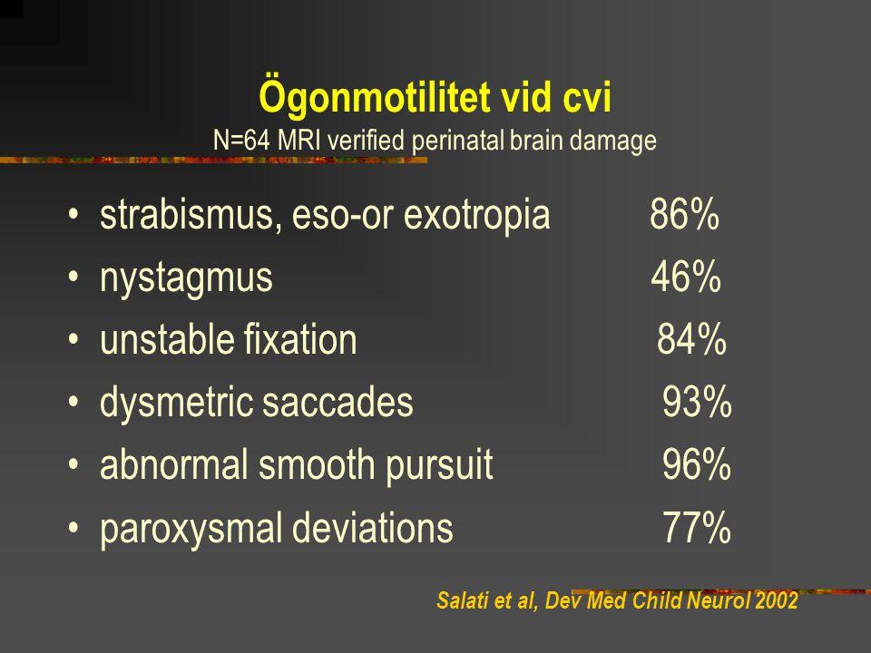 Ögonmotilitet vid cvi N=64 MRI verified perinatal brain damage strabismus, eso-or exotropia 86% nystagmus 46% unstable fixation 84% dysmetric saccades