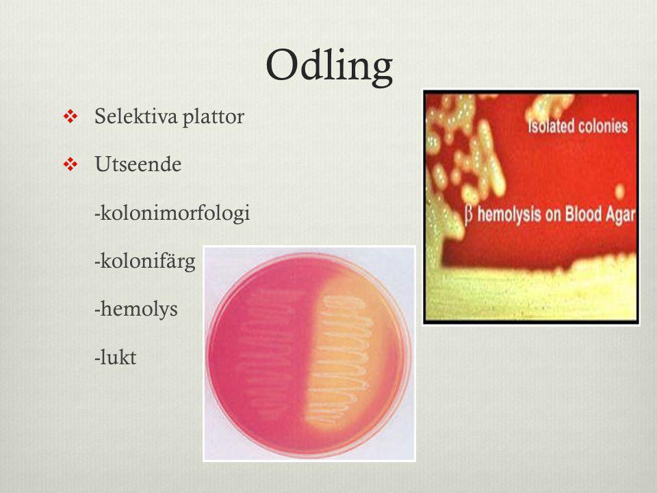 Odling  Selektiva plattor  Utseende -kolonimorfologi -kolonifärg -hemolys -lukt
