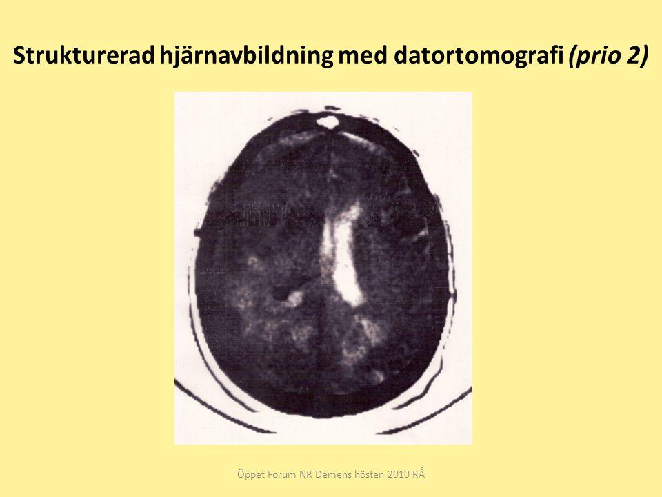 Strukturerad hjärnavbildning med datortomografi (prio 2) Öppet Forum NR Demens hösten 2010 RÅ