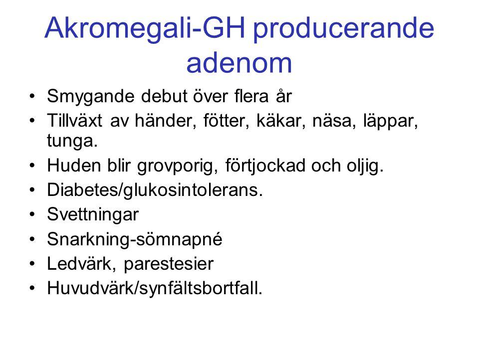 Akromegali-GH producerande adenom Smygande debut över flera år Tillväxt av händer, fötter, käkar, näsa, läppar, tunga. Huden blir grovporig, förtjocka