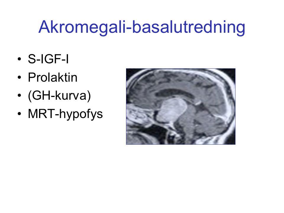 Akromegali-basalutredning S-IGF-I Prolaktin (GH-kurva) MRT-hypofys
