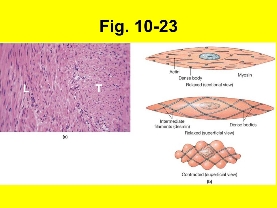 Fig. 10-23