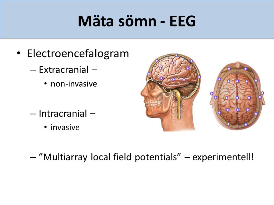 "Mäta sömn - EEG Electroencefalogram – Extracranial – non-invasive – Intracranial – invasive – ""Multiarray local field potentials"" – experimentell!"