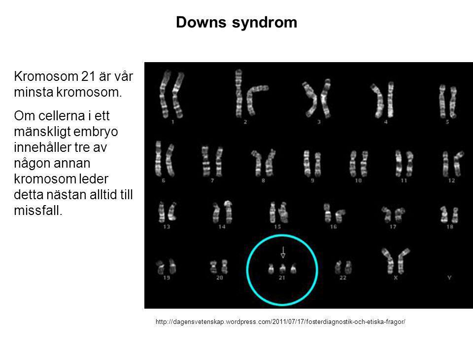 http://dagensvetenskap.wordpress.com/2011/07/17/fosterdiagnostik-och-etiska-fragor/ Downs syndrom Kromosom 21 är vår minsta kromosom. Om cellerna i et