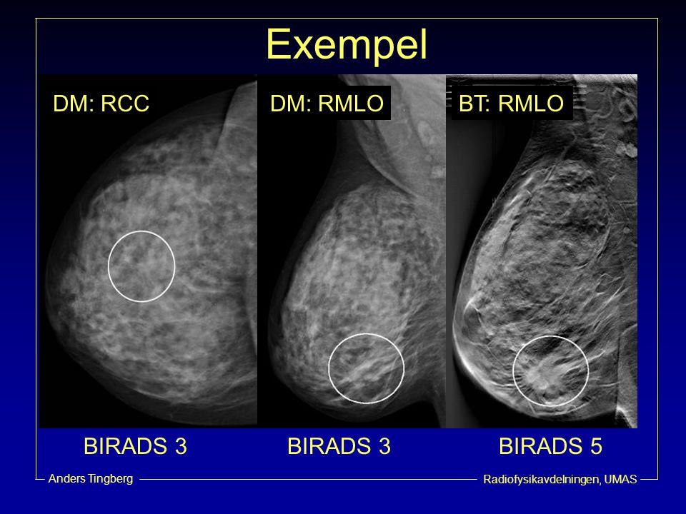 Radiofysikavdelningen, UMAS Anders Tingberg Exempel BIRADS 3 BIRADS 5 DM: RCCDM: RMLOBT: RMLO