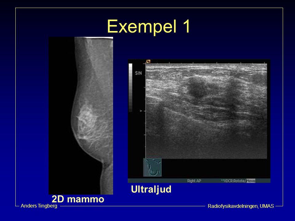 Radiofysikavdelningen, UMAS Anders Tingberg Exempel 1 2D mammo Ultraljud