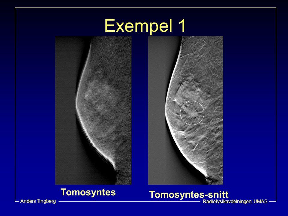 Radiofysikavdelningen, UMAS Anders Tingberg Exempel 1 Tomosyntes Tomosyntes-snitt