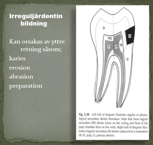 Irreguljärdentin bildning Kan orsakas av yttre retning såsom; karies erosion abrasion preparation