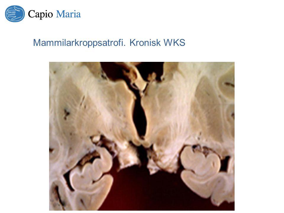 Mammilarkroppsatrofi. Kronisk WKS