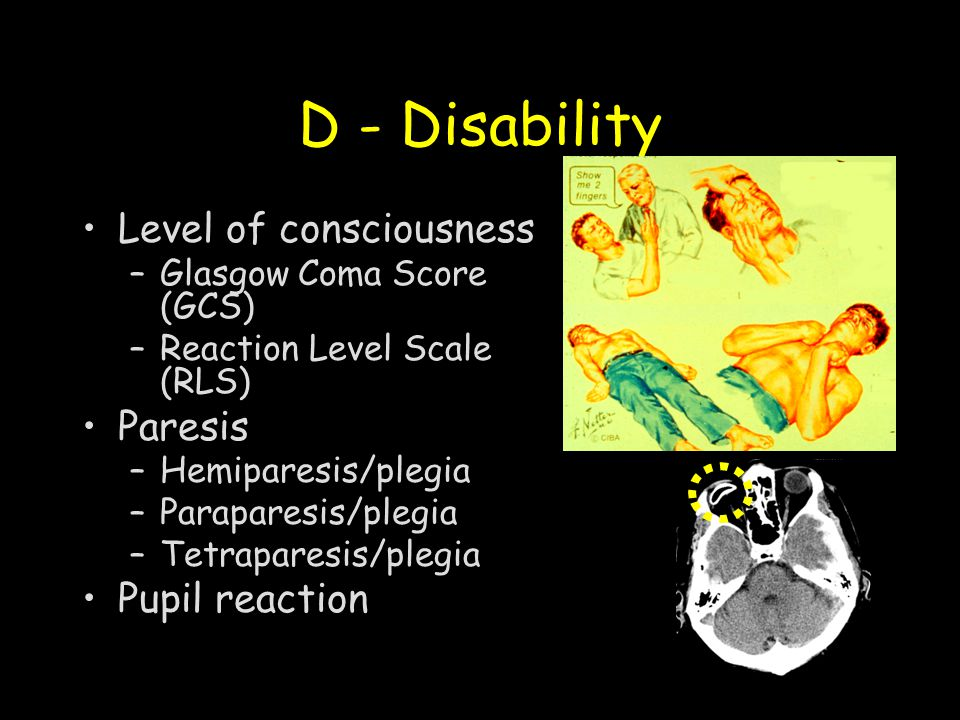 D - Disability Level of consciousness –Glasgow Coma Score (GCS) –Reaction Level Scale (RLS) Paresis –Hemiparesis/plegia –Paraparesis/plegia –Tetrapare