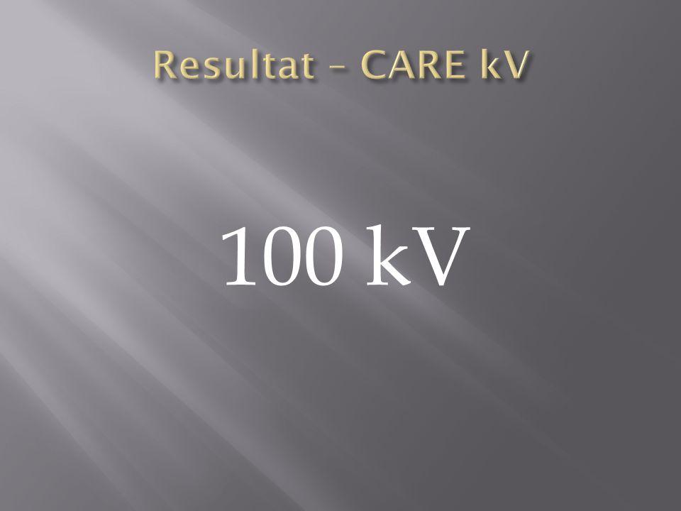 100 kV