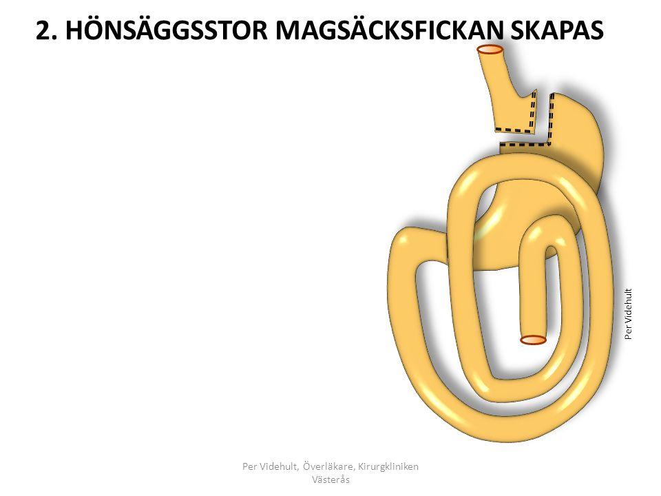 2. HÖNSÄGGSSTOR MAGSÄCKSFICKAN SKAPAS Per Videhult, Överläkare, Kirurgkliniken Västerås Per Videhult