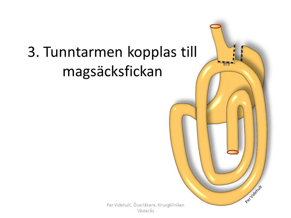 3. Tunntarmen kopplas till magsäcksfickan Per Videhult, Överläkare, Kirurgkliniken Västerås Per Videhult