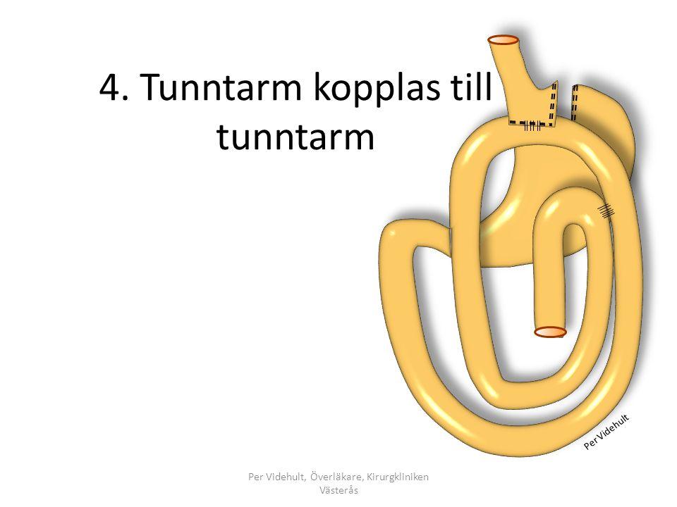 4. Tunntarm kopplas till tunntarm Per Videhult, Överläkare, Kirurgkliniken Västerås Per Videhult