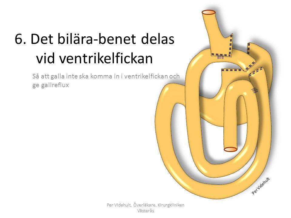 6. Det bilära-benet delas vid ventrikelfickan Så att galla inte ska komma in i ventrikelfickan och ge gallreflux Per Videhult, Överläkare, Kirurgklini