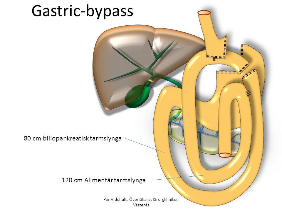 Gastric-bypass 80 cm biliopankreatisk tarmslynga 120 cm Alimentär tarmslynga Per Videhult, Överläkare, Kirurgkliniken Västerås