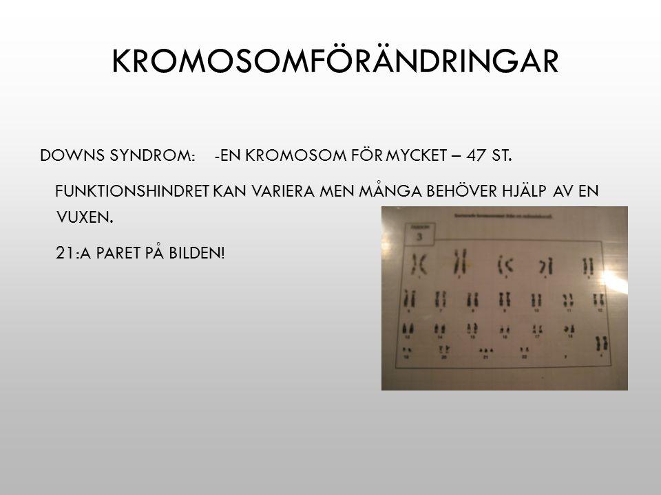 KROMOSOMFÖRÄNDRINGAR DOWNS SYNDROM: -EN KROMOSOM FÖR MYCKET – 47 ST. FUNKTIONSHINDRET KAN VARIERA MEN MÅNGA BEHÖVER HJÄLP AV EN VUXEN. 21:A PARET PÅ B