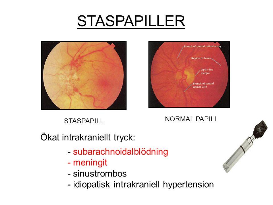 STASPAPILLER Ökat intrakraniellt tryck: - subarachnoidalblödning - meningit - sinustrombos - idiopatisk intrakraniell hypertension STASPAPILL NORMAL P
