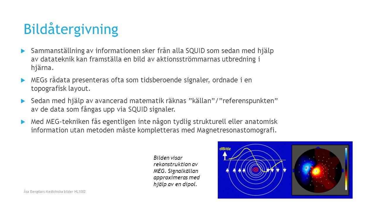 Bildåtergivning  Sammanställning av informationen sker från alla SQUID som sedan med hjälp av datateknik kan framställa en bild av aktionsströmmarnas