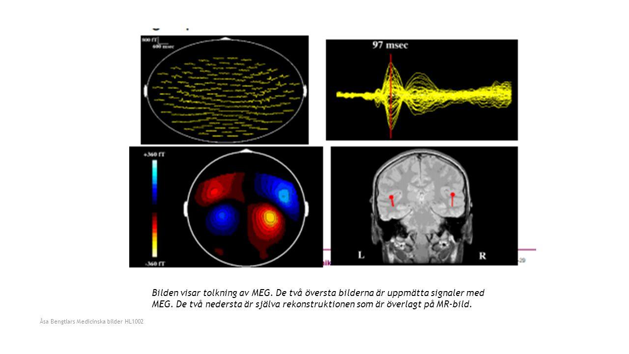 Bilden visar tolkning av MEG. De två översta bilderna är uppmätta signaler med MEG. De två nedersta är själva rekonstruktionen som är överlagt på MR-b