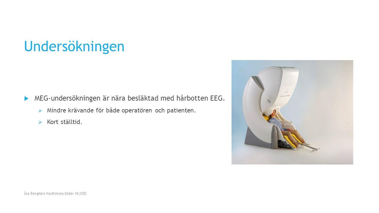 Undersökningen  MEG-undersökningen är nära besläktad med hårbotten EEG.  Mindre krävande för både operatören och patienten.  Kort ställtid. Åsa Ben