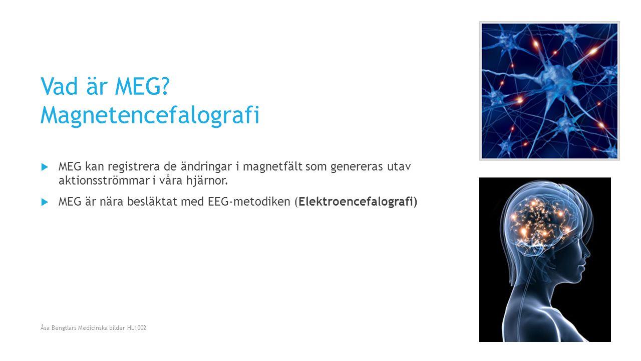 Vad är MEG? Magnetencefalografi  MEG kan registrera de ändringar i magnetfält som genereras utav aktionsströmmar i våra hjärnor.  MEG är nära besläk