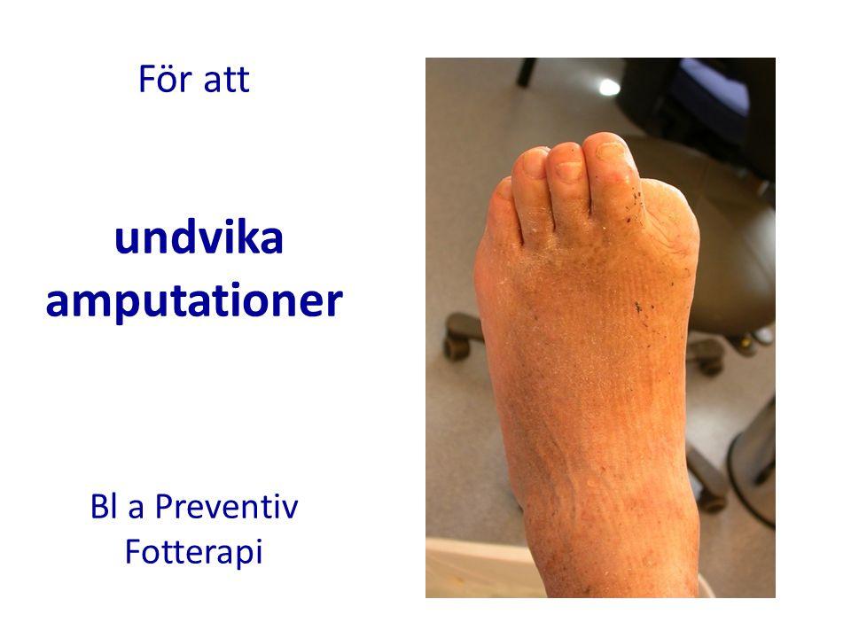 För att undvika amputationer Bl a Preventiv Fotterapi