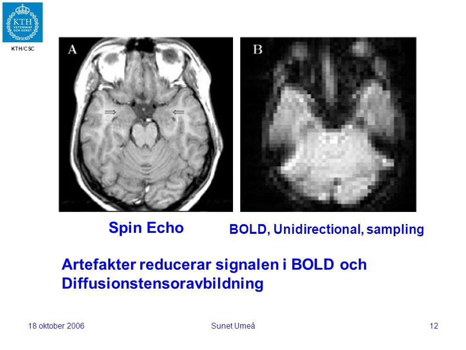 KTH/CSC 18 oktober 2006Sunet Umeå12 Artefakter reducerar signalen i BOLD och Diffusionstensoravbildning Spin Echo BOLD, Unidirectional, sampling