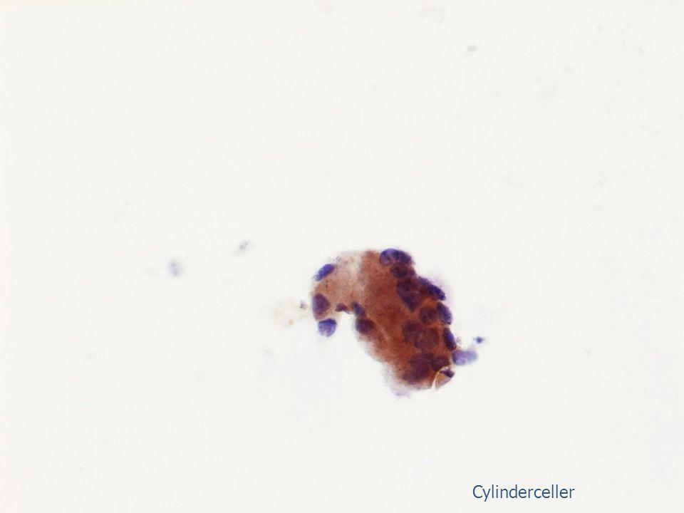 Cylinderceller