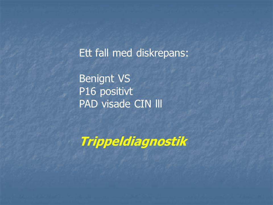 Ett fall med diskrepans: Benignt VS P16 positivt PAD visade CIN lll Trippeldiagnostik