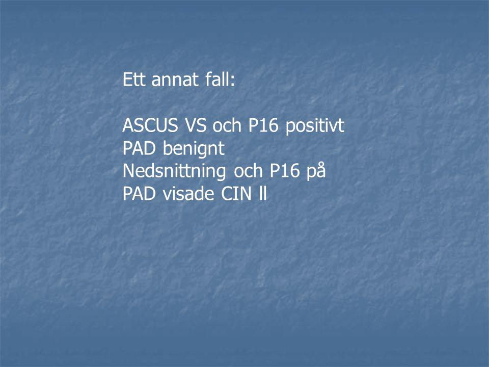 Ett annat fall: ASCUS VS och P16 positivt PAD benignt Nedsnittning och P16 på PAD visade CIN ll