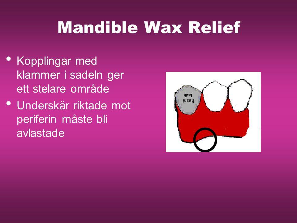 Mandible Wax Relief Kopplingar med klammer i sadeln ger ett stelare område Underskär riktade mot periferin måste bli avlastade