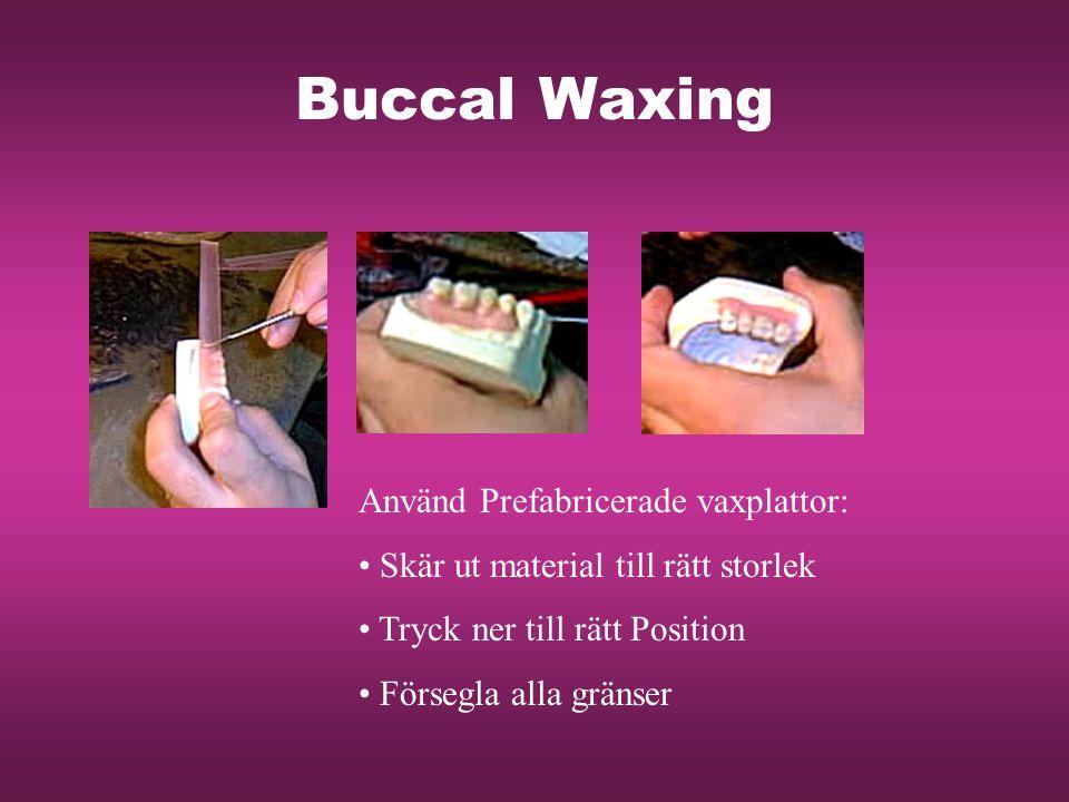 Buccal Waxing Använd Prefabricerade vaxplattor: Skär ut material till rätt storlek Tryck ner till rätt Position Försegla alla gränser
