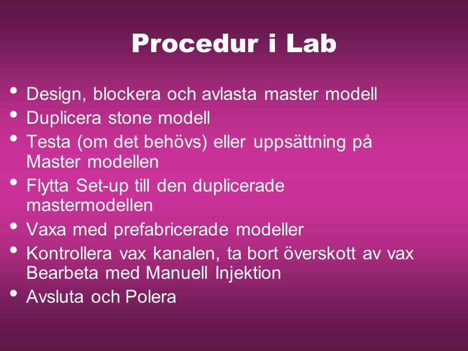 Procedur i Lab Design, blockera och avlasta master modell Duplicera stone modell Testa (om det behövs) eller uppsättning på Master modellen Flytta Set