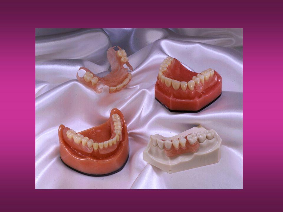 Waxing After Setup Valplast rekommenderar att man använder prefabricerade vax basplattor för att försäkra sig om rätt tjocklek och likformighet