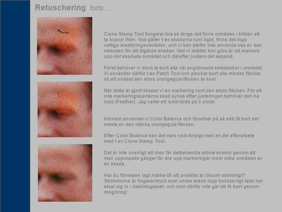 Retuschering forts… Clone Stamp Tool fungerar bra så länge det finns områden i bilden att ta kopior ifrån. Vad gäller t ex skadorna runt ögat, finns d