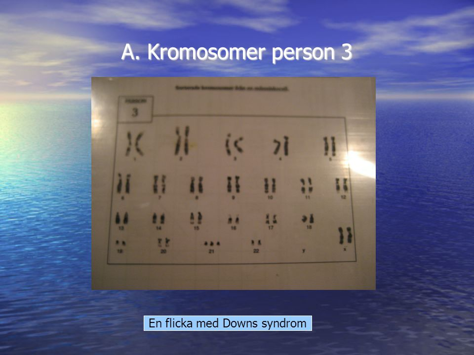 A. Kromosomer person 3 En flicka med Downs syndrom