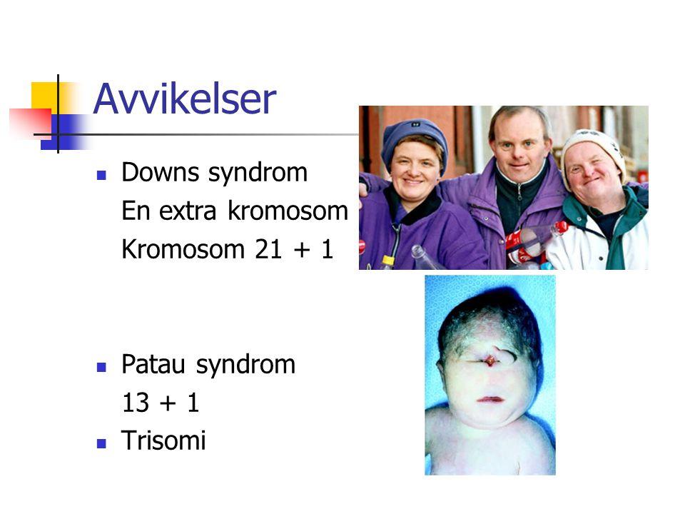 Avvikelser Downs syndrom En extra kromosom Kromosom 21 + 1 Patau syndrom 13 + 1 Trisomi