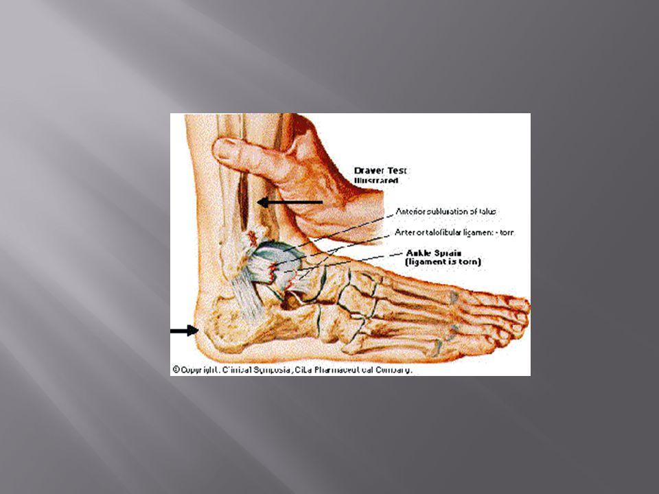  Uppstår vid kontaktidrotter samt utförsåkning på skidor  Leder till smärta och att knät känns ostadigt, dock ingen svullnad  Man bli ofta återställd utan operation, tar dock 10-12 veckor