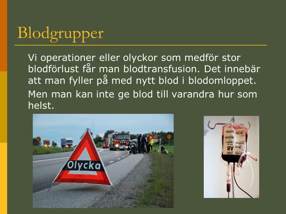 Blodgrupper Vi operationer eller olyckor som medför stor blodförlust får man blodtransfusion. Det innebär att man fyller på med nytt blod i blodomlopp