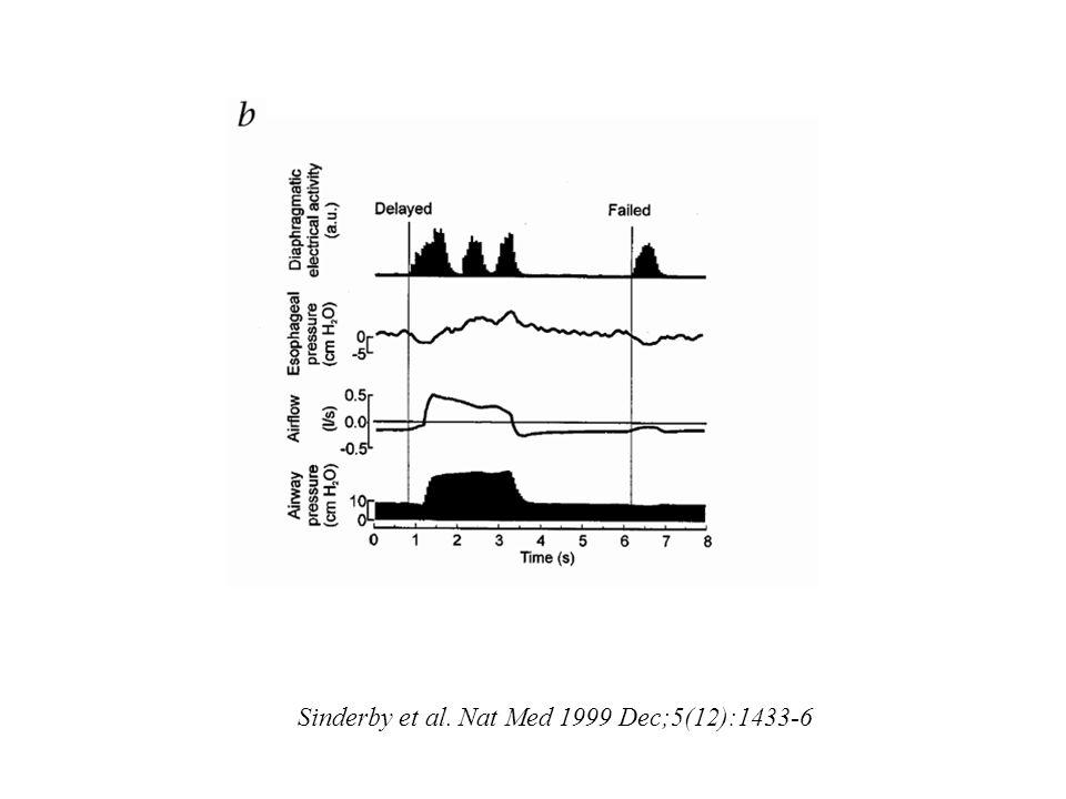 Sinderby et al. Nat Med 1999 Dec;5(12):1433-6