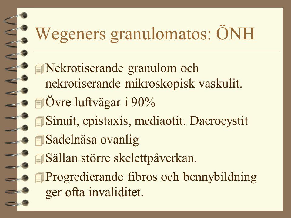 Wegeners granulomatos: ÖNH 4 Nekrotiserande granulom och nekrotiserande mikroskopisk vaskulit. 4 Övre luftvägar i 90% 4 Sinuit, epistaxis, mediaotit.