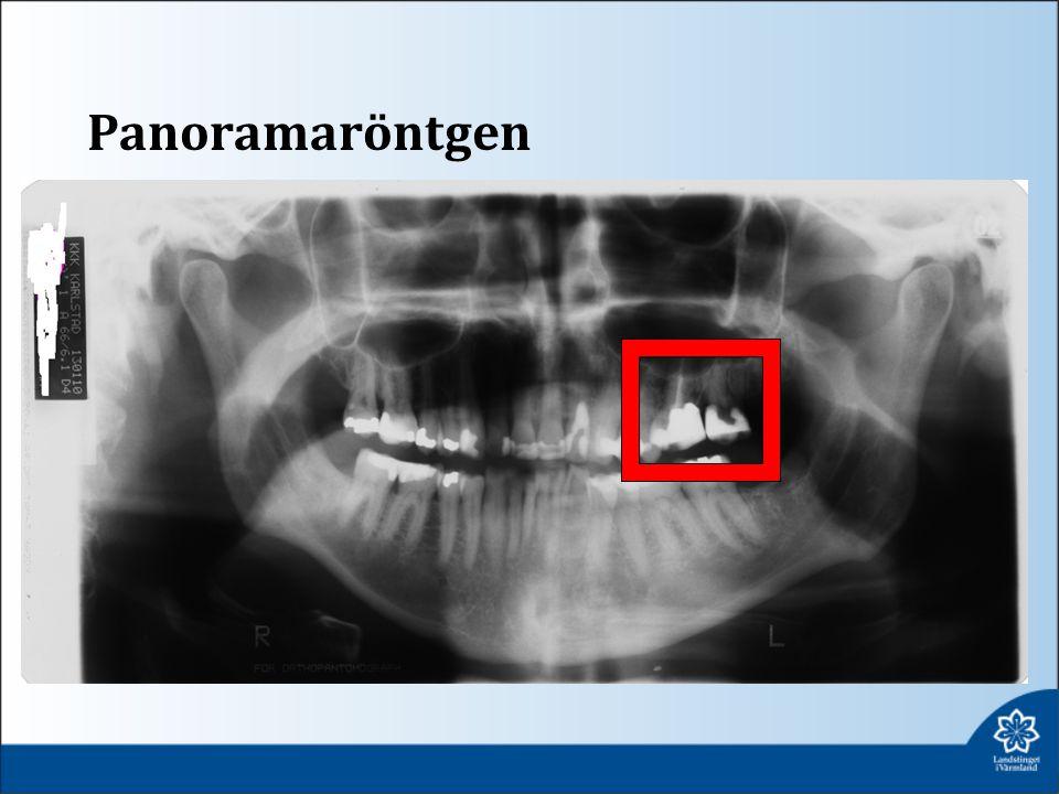 Panoramaröntgen