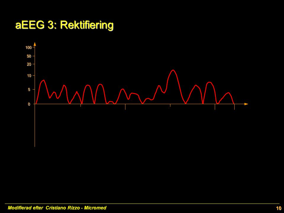 100 50 20 10 5 0 10 aEEG 3: Rektifiering aEEG 3: Rektifiering