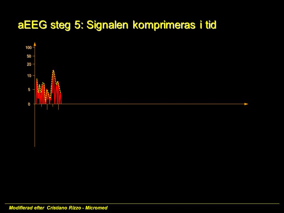 100 50 20 10 5 0 aEEG steg 5: Signalen komprimeras i tid
