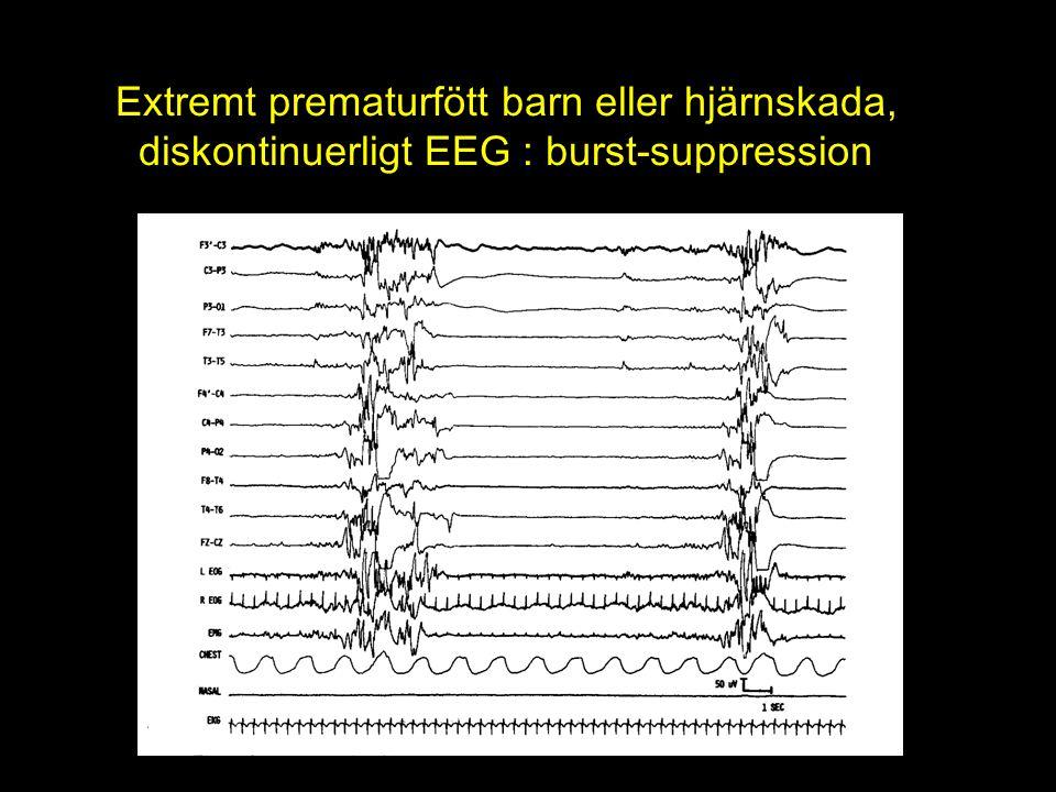 Extremt prematurfött barn eller hjärnskada, diskontinuerligt EEG : burst-suppression